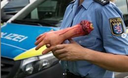 Frau befürchtet das Schlimmste: Blutige Hand ragt aus Kofferraum