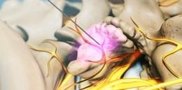 Schmerztherapie bei Arthrose der kleinen Wirbelgelenke (Fortsetzung)